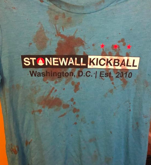 Gay Kickballer Turns Homophobic Assault into Message for Hope and Unity